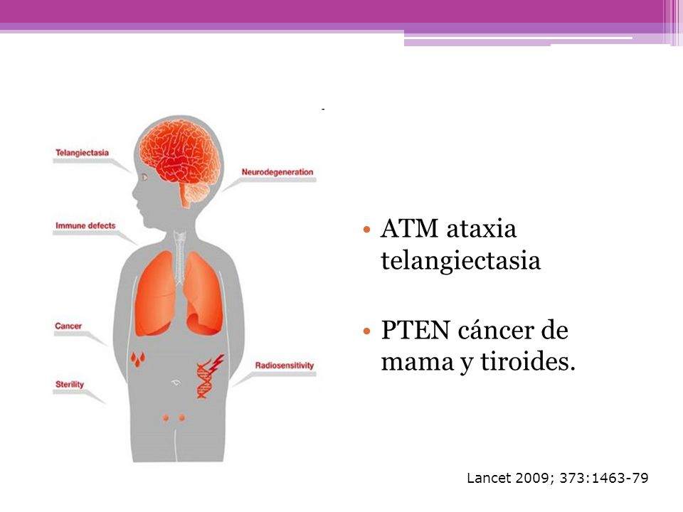 ATM ataxia telangiectasia PTEN cáncer de mama y tiroides. Lancet 2009; 373:1463-79