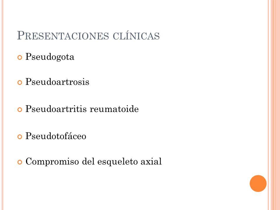 P RESENTACIONES CLÍNICAS Pseudogota Pseudoartrosis Pseudoartritis reumatoide Pseudotofáceo Compromiso del esqueleto axial