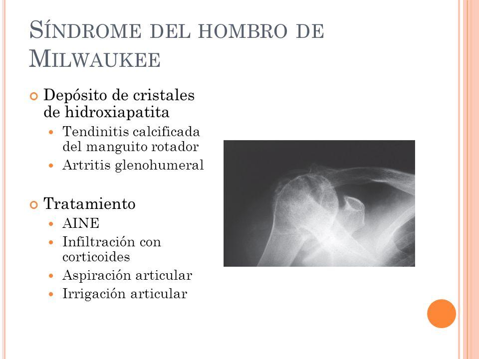 S ÍNDROME DEL HOMBRO DE M ILWAUKEE Depósito de cristales de hidroxiapatita Tendinitis calcificada del manguito rotador Artritis glenohumeral Tratamien