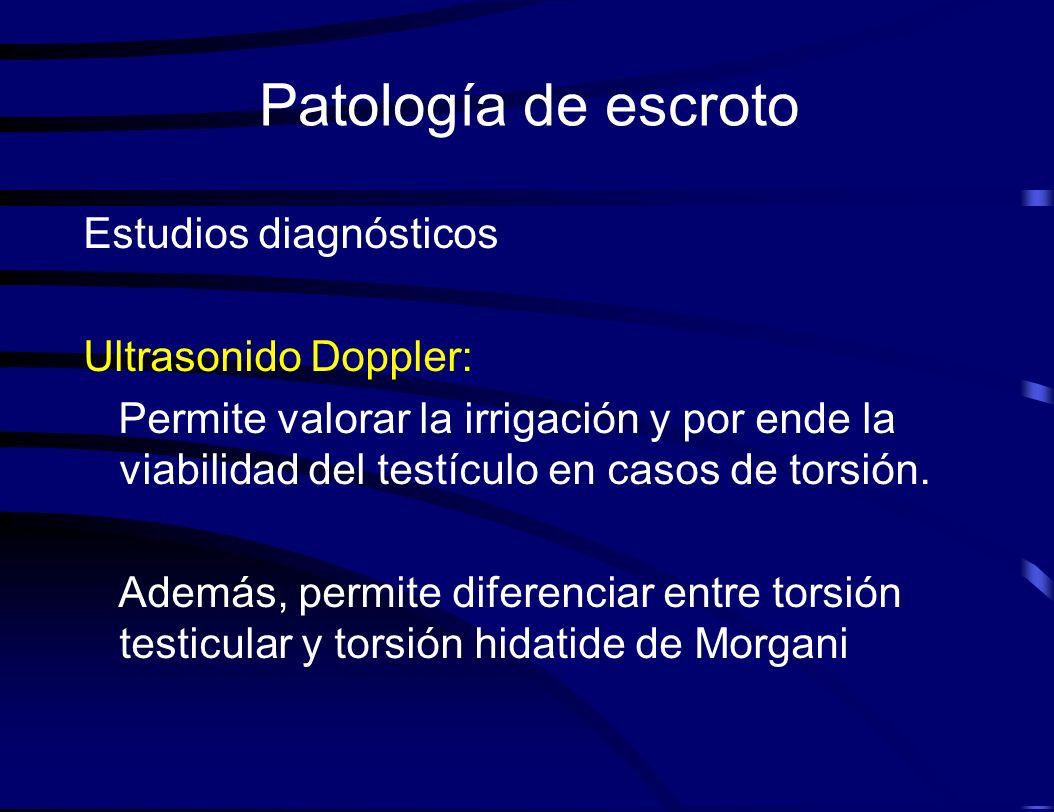 Patología de escroto Estudios diagnósticos Ultrasonido Doppler: Permite valorar la irrigación y por ende la viabilidad del testículo en casos de torsi