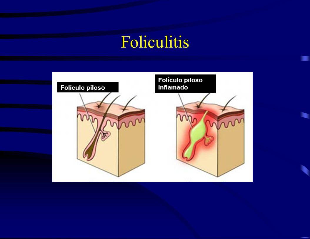 Foliculitis Folículo piloso Folículo piloso inflamado