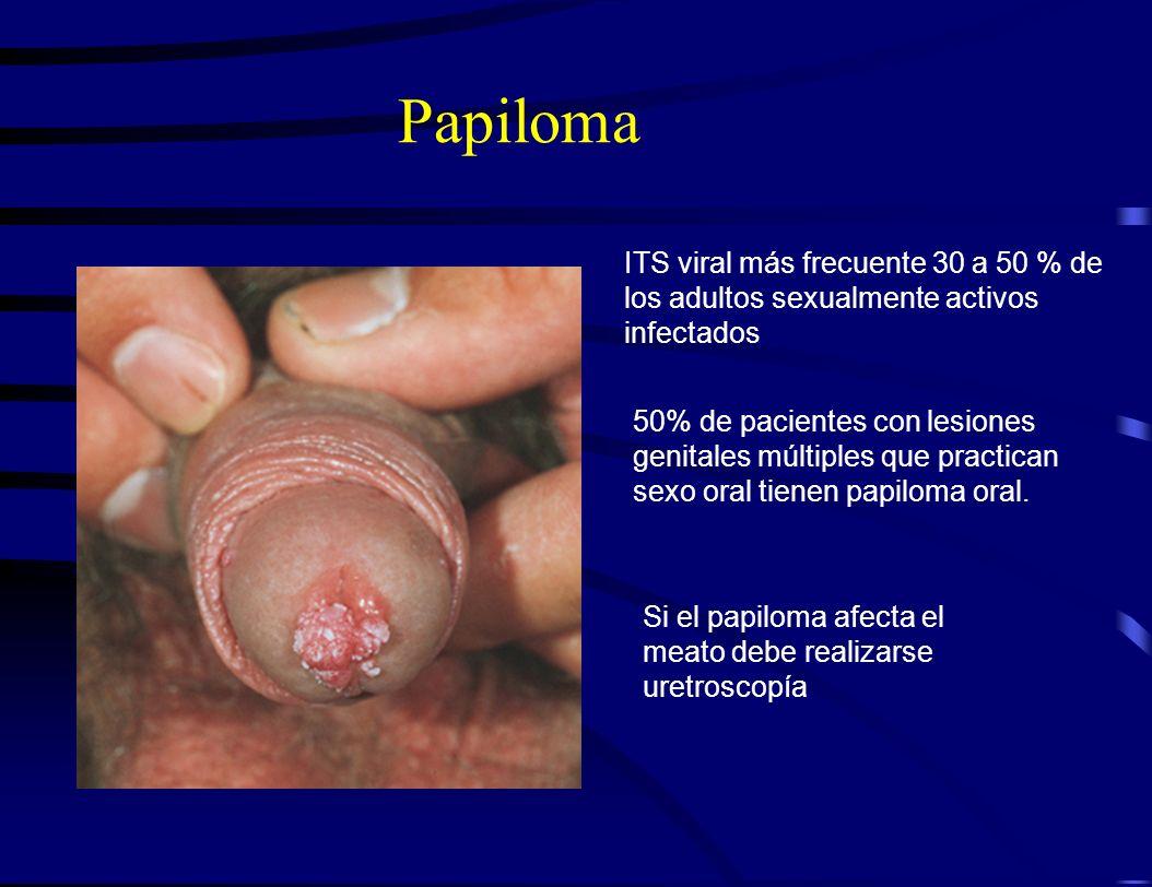 Papiloma ITS viral más frecuente 30 a 50 % de los adultos sexualmente activos infectados 50% de pacientes con lesiones genitales múltiples que practic