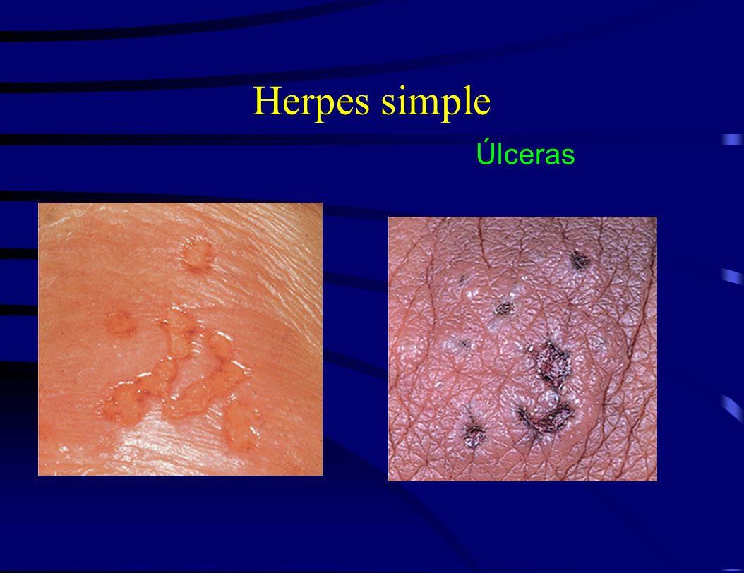 Herpes simple Úlceras