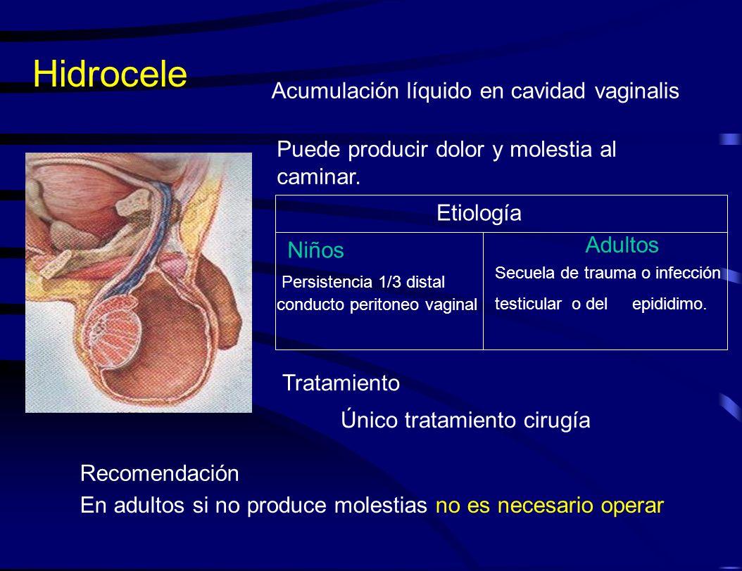 Hidrocele Acumulación líquido en cavidad vaginalis Puede producir dolor y molestia al caminar. Único tratamiento cirugía En adultos si no produce mole