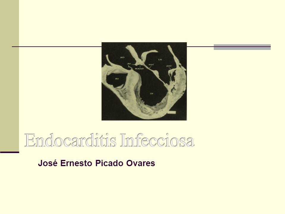 José Ernesto Picado Ovares