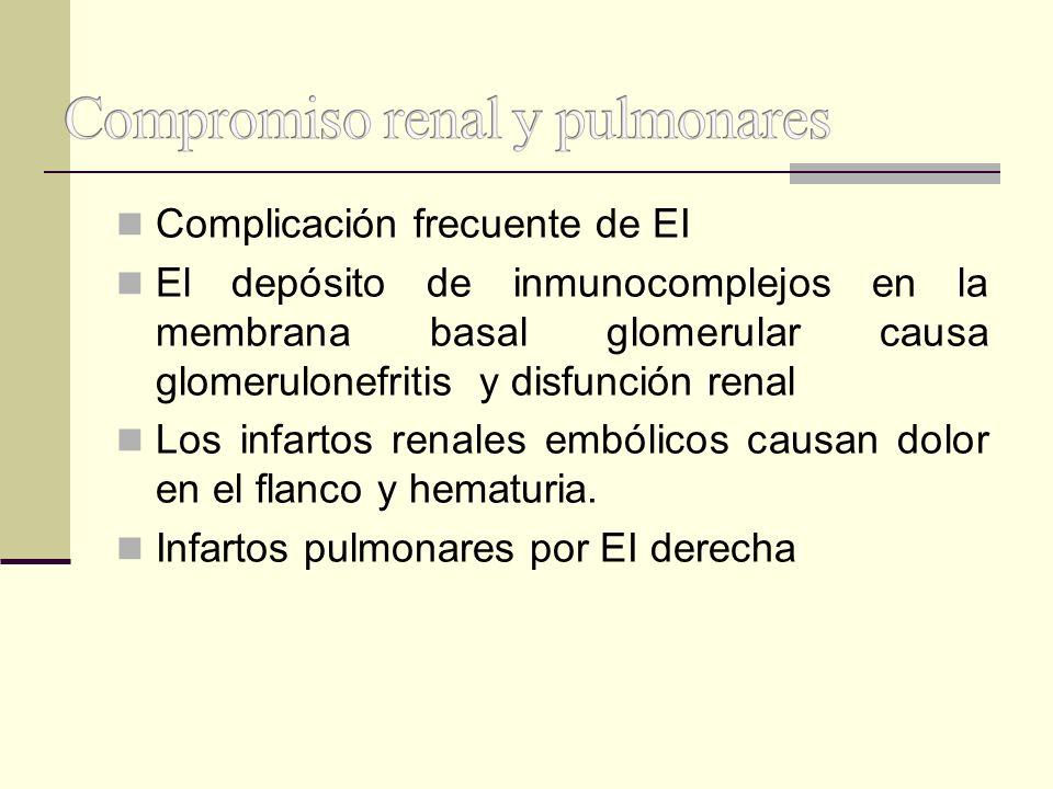 Complicación frecuente de EI El depósito de inmunocomplejos en la membrana basal glomerular causa glomerulonefritis y disfunción renal Los infartos re