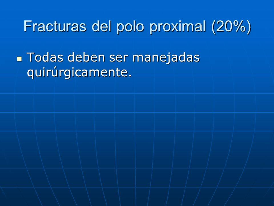 Fracturas del polo proximal (20%) Todas deben ser manejadas quirúrgicamente. Todas deben ser manejadas quirúrgicamente.