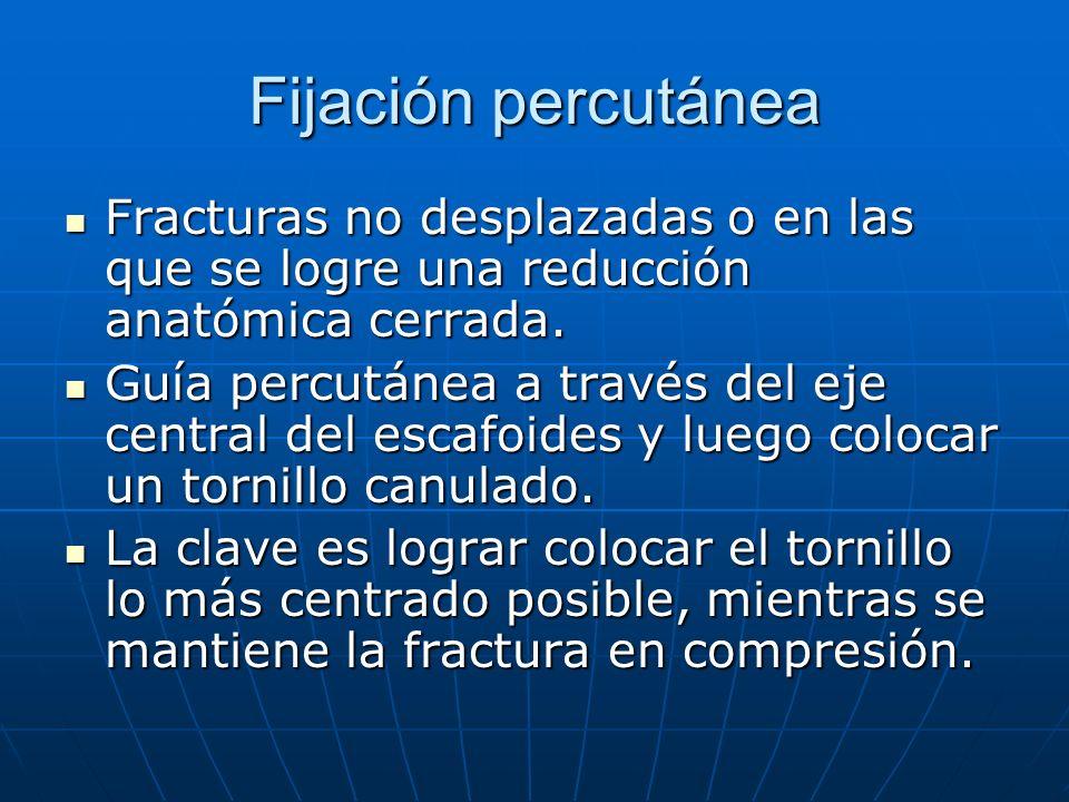 Fijación percutánea Fracturas no desplazadas o en las que se logre una reducción anatómica cerrada. Fracturas no desplazadas o en las que se logre una