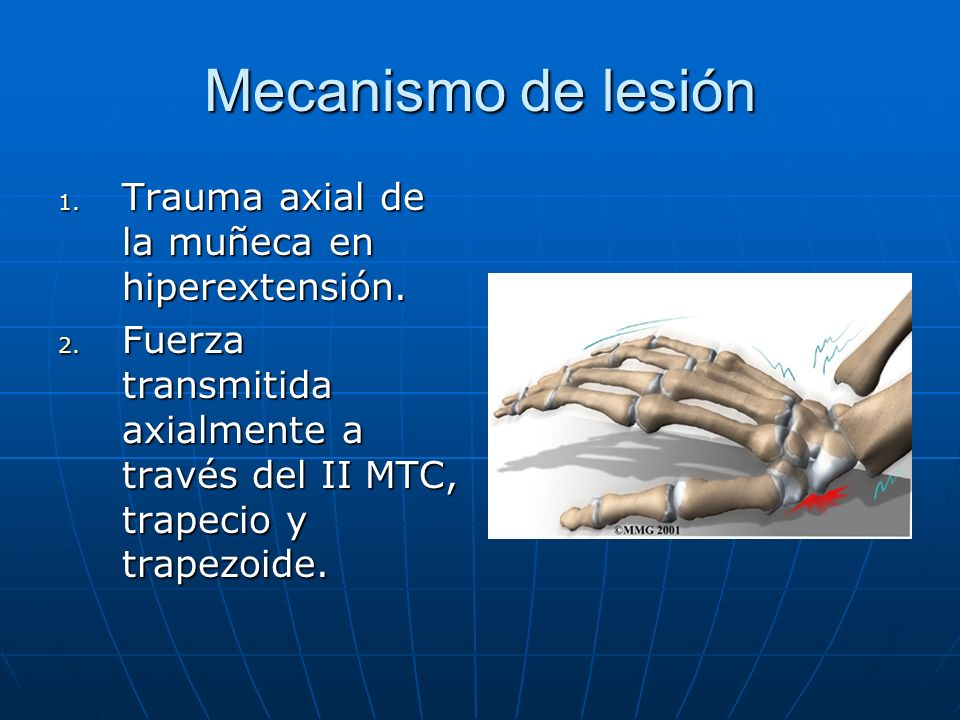 Mecanismo de lesión 1. Trauma axial de la muñeca en hiperextensión. 2. Fuerza transmitida axialmente a través del II MTC, trapecio y trapezoide.
