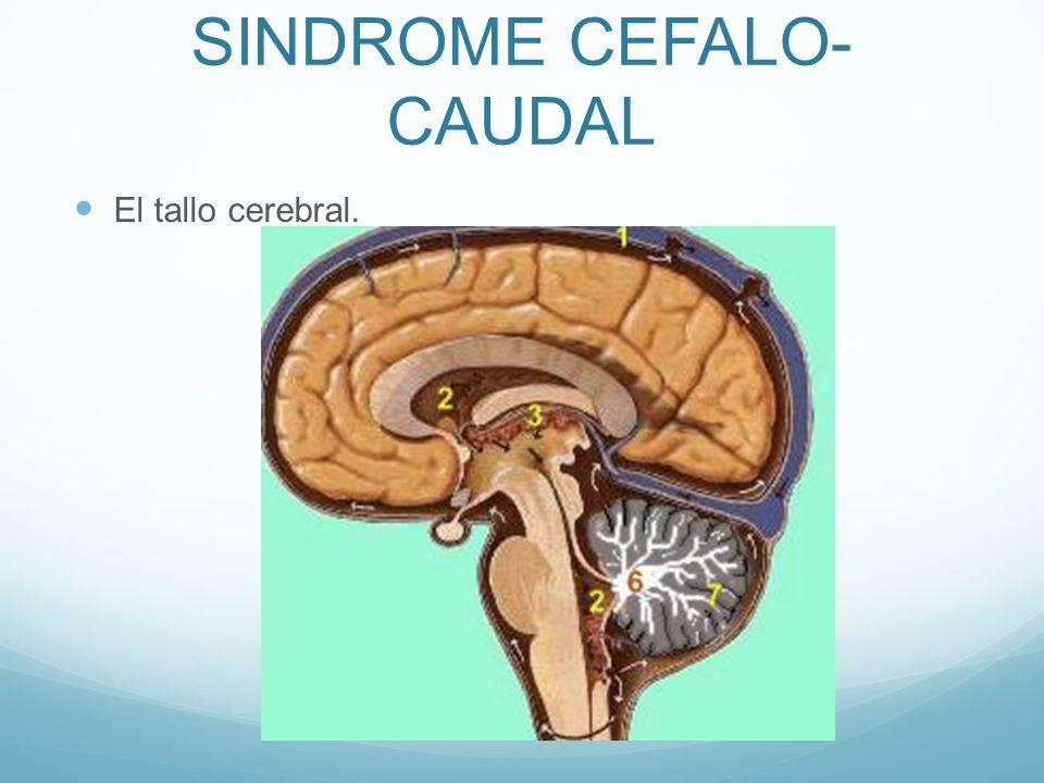 SINDROME CEFALO- CAUDAL El tallo cerebral.