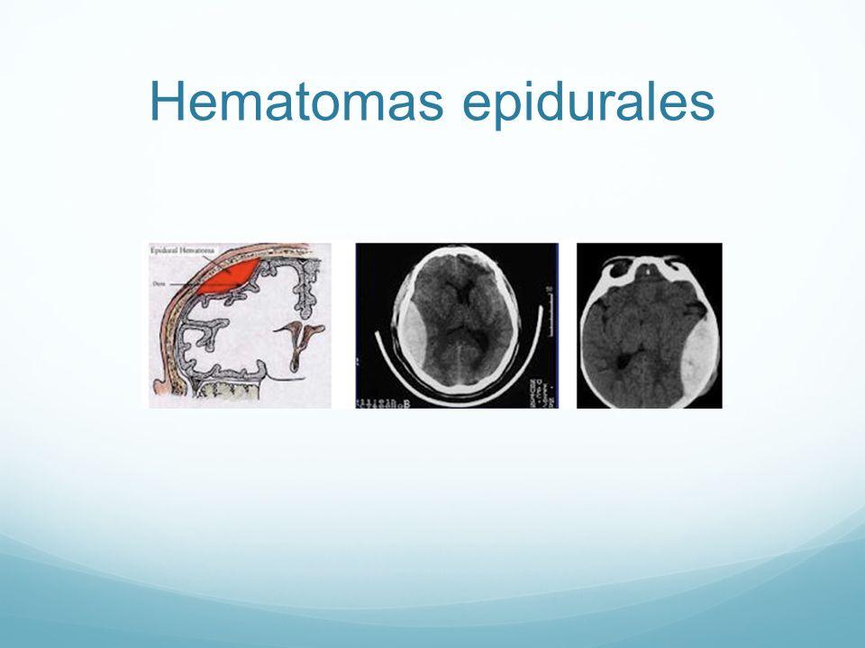 Hematomas epidurales