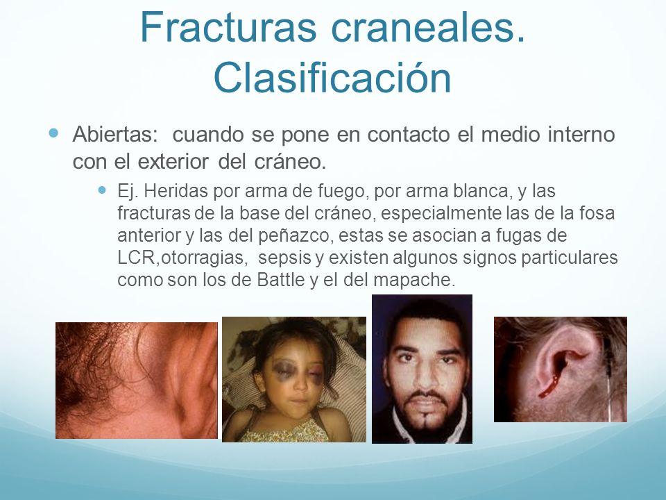 Fracturas craneales. Clasificación Abiertas: cuando se pone en contacto el medio interno con el exterior del cráneo. Ej. Heridas por arma de fuego, po