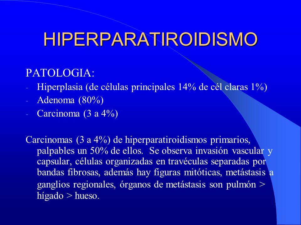 HIPERPARATIROIDISMO PATOLOGIA: - Hiperplasia (de células principales 14% de cél claras 1%) - Adenoma (80%) - Carcinoma (3 a 4%) Carcinomas (3 a 4%) de