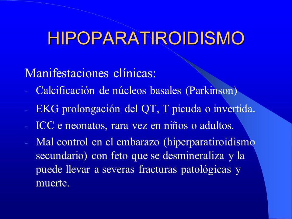 HIPOPARATIROIDISMO Manifestaciones clínicas: - Calcificación de núcleos basales (Parkinson) - EKG prolongación del QT, T picuda o invertida. - ICC e n