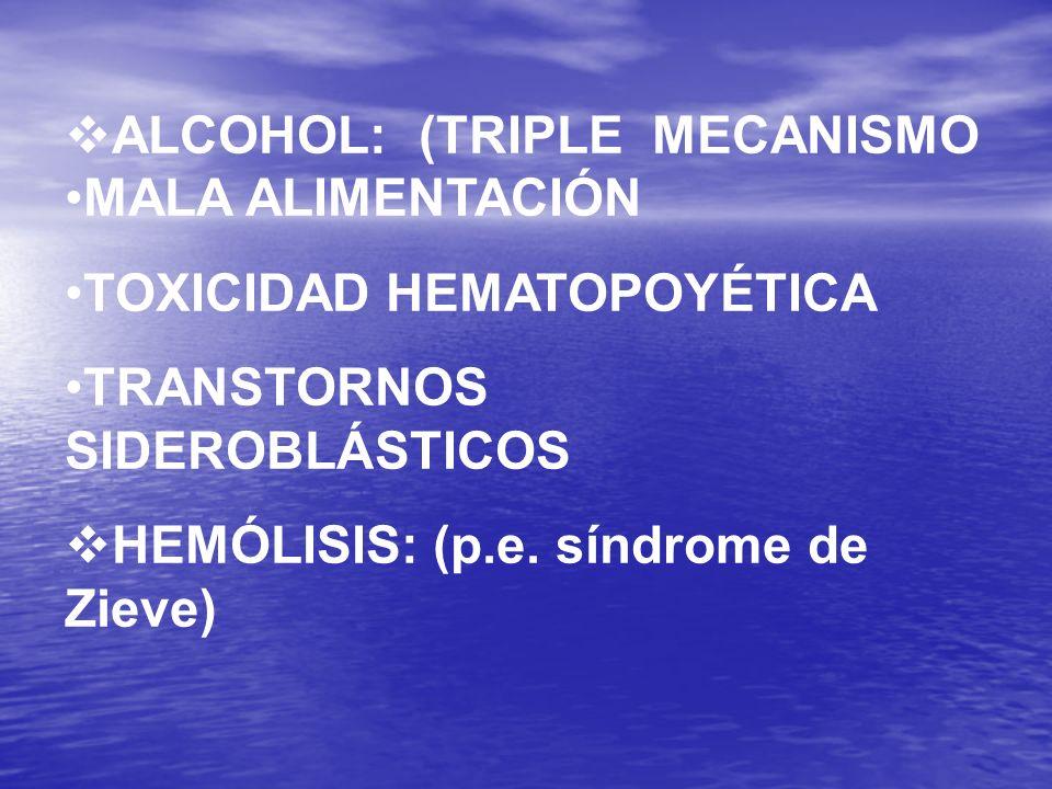 ALCOHOL: (TRIPLE MECANISMO MALA ALIMENTACIÓN TOXICIDAD HEMATOPOYÉTICA TRANSTORNOS SIDEROBLÁSTICOS HEMÓLISIS: (p.e. síndrome de Zieve)