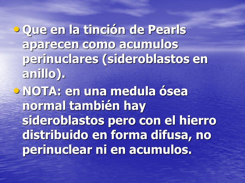 Que en la tinción de Pearls aparecen como acumulos perinuclares (sideroblastos en anillo). Que en la tinción de Pearls aparecen como acumulos perinucl