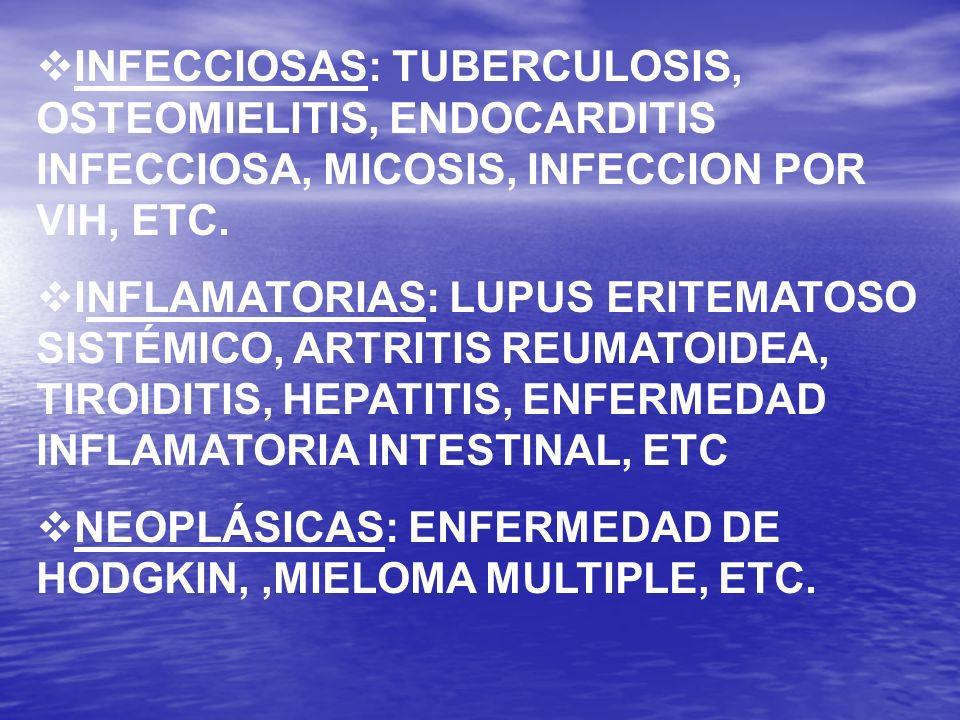 INFECCIOSAS: TUBERCULOSIS, OSTEOMIELITIS, ENDOCARDITIS INFECCIOSA, MICOSIS, INFECCION POR VIH, ETC. INFLAMATORIAS: LUPUS ERITEMATOSO SISTÉMICO, ARTRIT