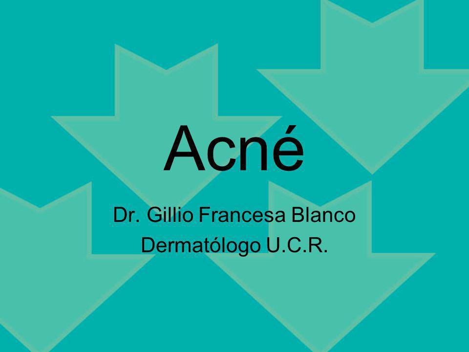 Acné Dr. Gillio Francesa Blanco Dermatólogo U.C.R.