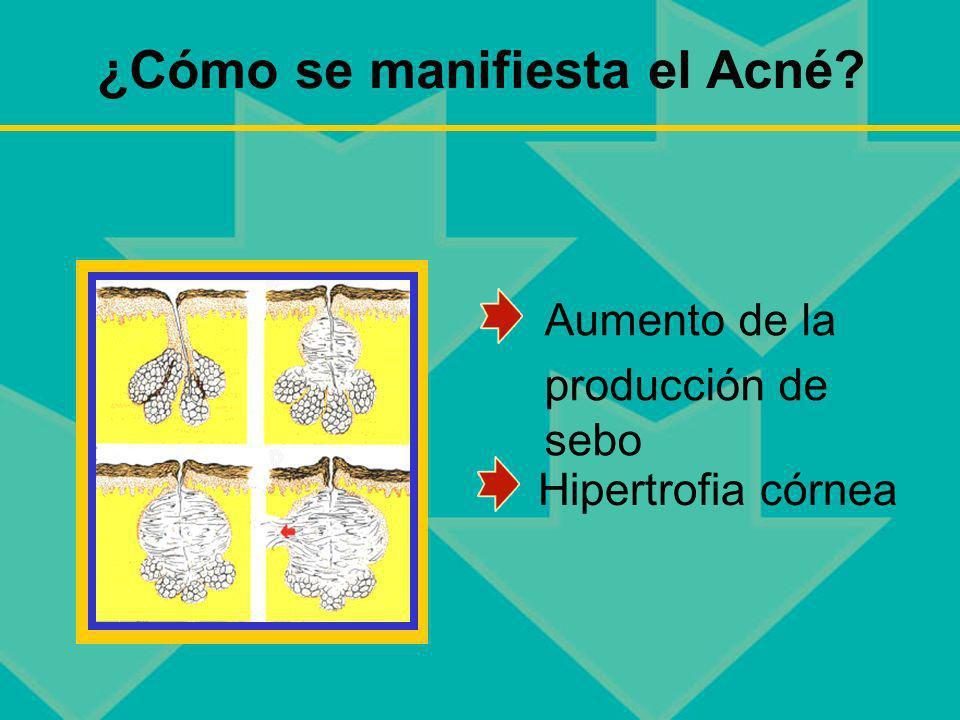 ¿Cómo se manifiesta el Acné? Aumento de la producción de sebo Hipertrofia córnea