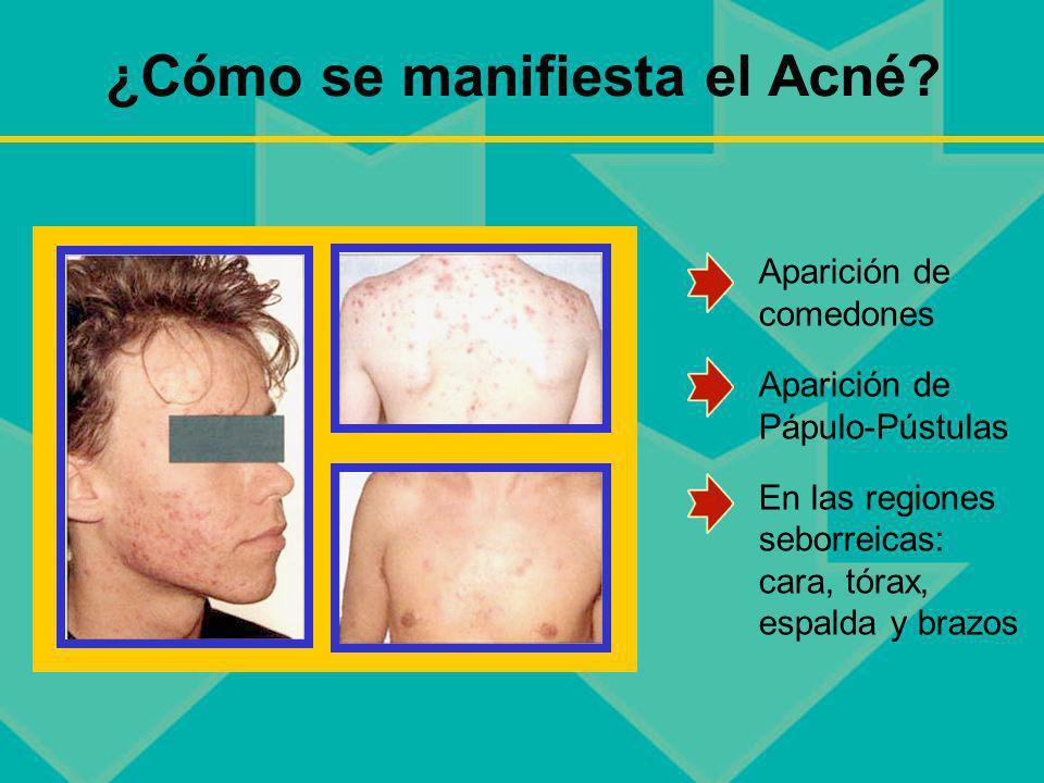 ¿Cómo se manifiesta el Acné? Aparición de comedones Aparición de Pápulo-Pústulas En las regiones seborreicas: cara, tórax, espalda y brazos