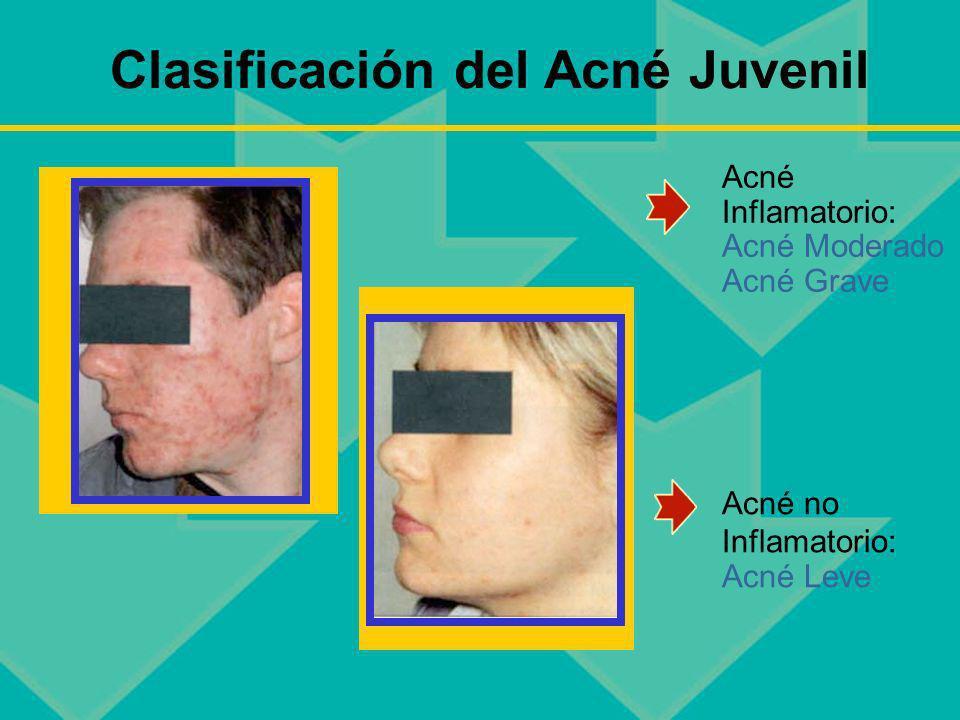Clasificación del Acné Juvenil Acné Inflamatorio: Acné Moderado Acné Grave Acné no Inflamatorio: Acné Leve
