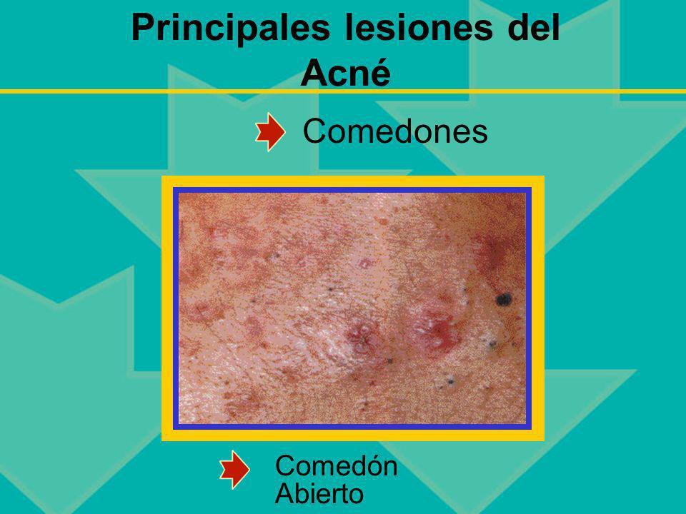 Principales lesiones del Acné Comedón Abierto Comedones