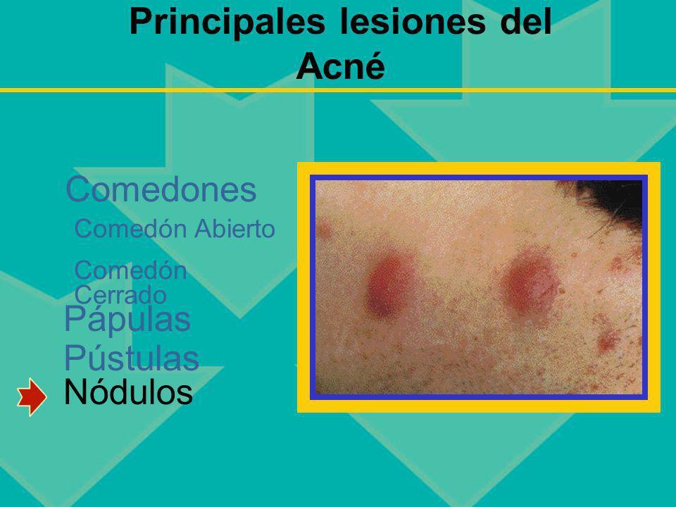 Principales lesiones del Acné Pápulas Pústulas Nódulos Comedones Comedón Abierto Comedón Cerrado