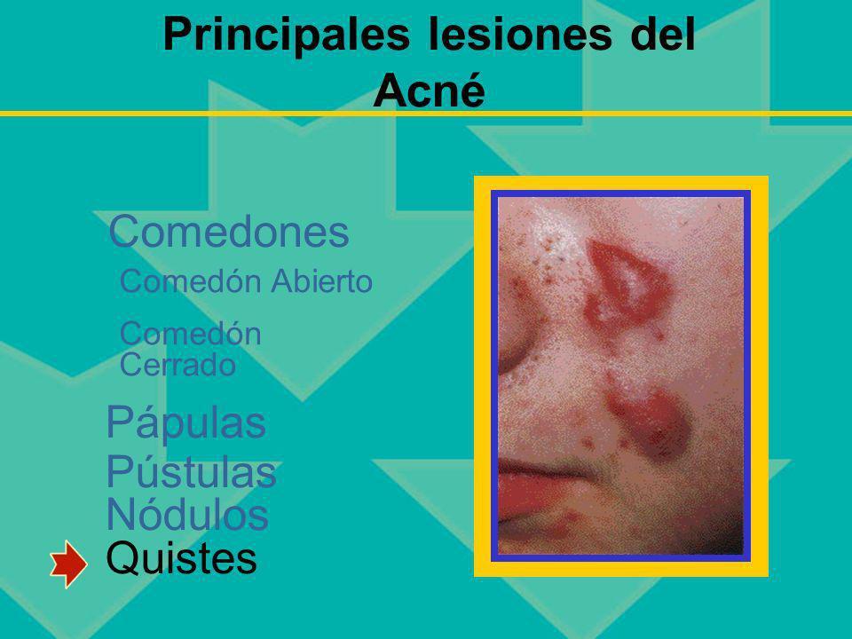 Principales lesiones del Acné Pápulas Pústulas Nódulos Quistes Comedones Comedón Abierto Comedón Cerrado