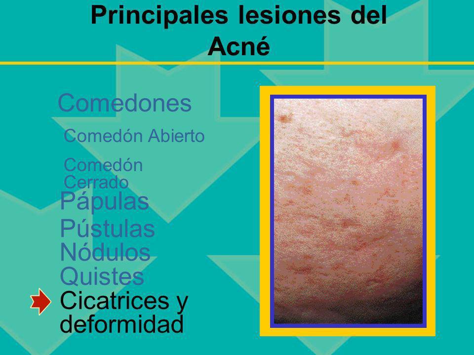 Principales lesiones del Acné Pápulas Pústulas Nódulos Quistes Cicatrices y deformidad Comedones Comedón Abierto Comedón Cerrado