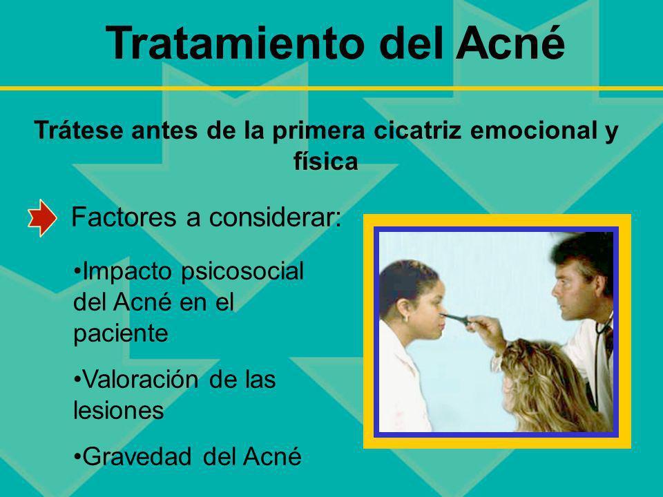 Tratamiento del Acné Trátese antes de la primera cicatriz emocional y física Impacto psicosocial del Acné en el paciente Valoración de las lesiones Gr