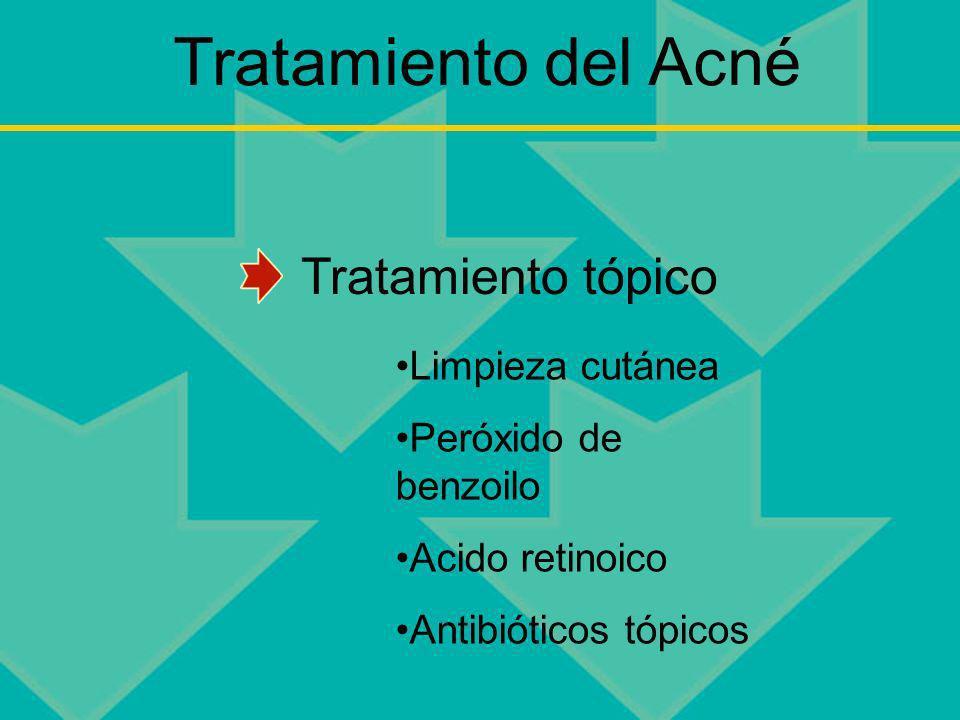 Tratamiento del Acné Limpieza cutánea Peróxido de benzoilo Acido retinoico Antibióticos tópicos Tratamiento tópico