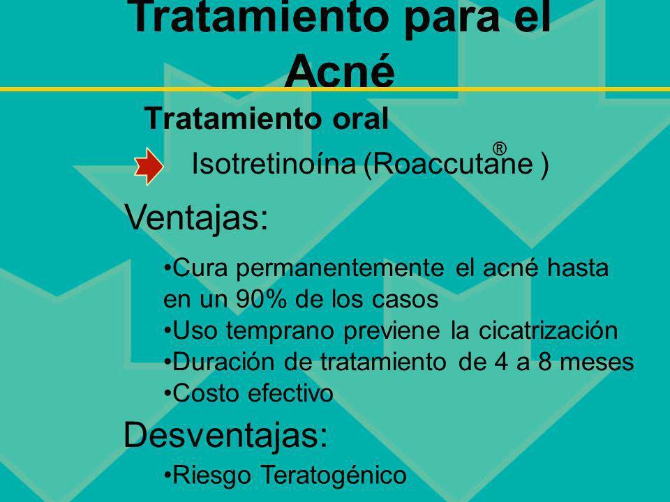 Tratamiento para el Acné Isotretinoína (Roaccutane ) Tratamiento oral Cura permanentemente el acné hasta en un 90% de los casos Uso temprano previene