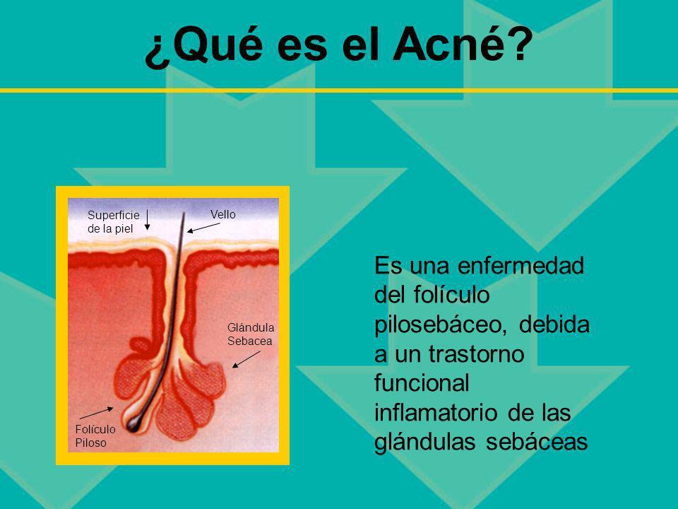 ¿Qué es el Acné? Es una enfermedad del folículo pilosebáceo, debida a un trastorno funcional inflamatorio de las glándulas sebáceas Superficie de la p