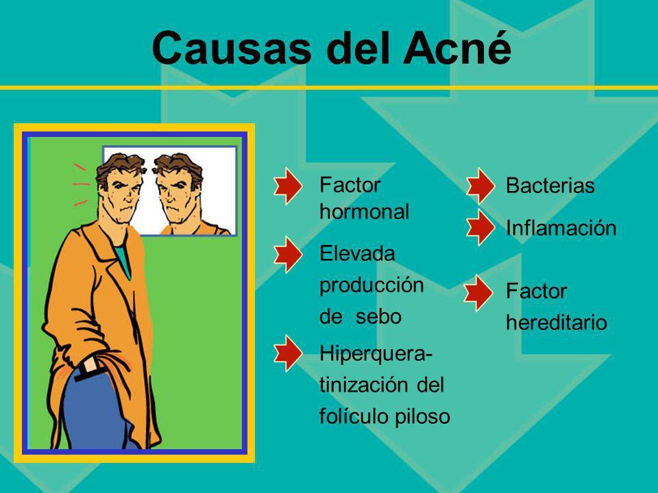 Causas del Acné Factor hormonal Elevada producción de sebo Hiperquera- tinización del folículo piloso Bacterias Inflamación Factor hereditario