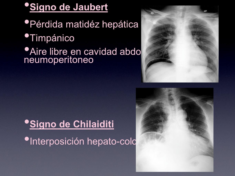 Signo de Jaubert Pérdida matidéz hepática Timpánico Aire libre en cavidad abdominal = neumoperitoneo Signo de Chilaiditi Interposición hepato-colonica