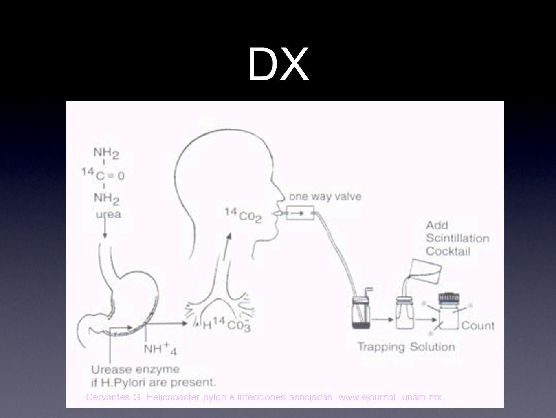 DX BH Prueba de ureasa Administra urea marcada con C 13 o C 14.