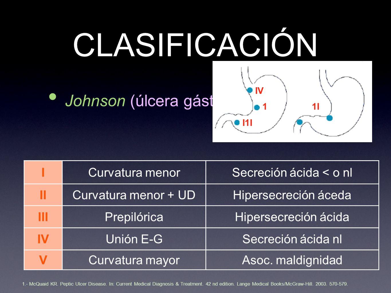 CLASIFICACIÓN Johnson (úlcera gástrica) ICurvatura menorSecreción ácida < o nl IICurvatura menor + UDHipersecreción áceda IIIPrepilóricaHipersecreción ácida IVUnión E-GSecreción ácida nl VCurvatura mayorAsoc.