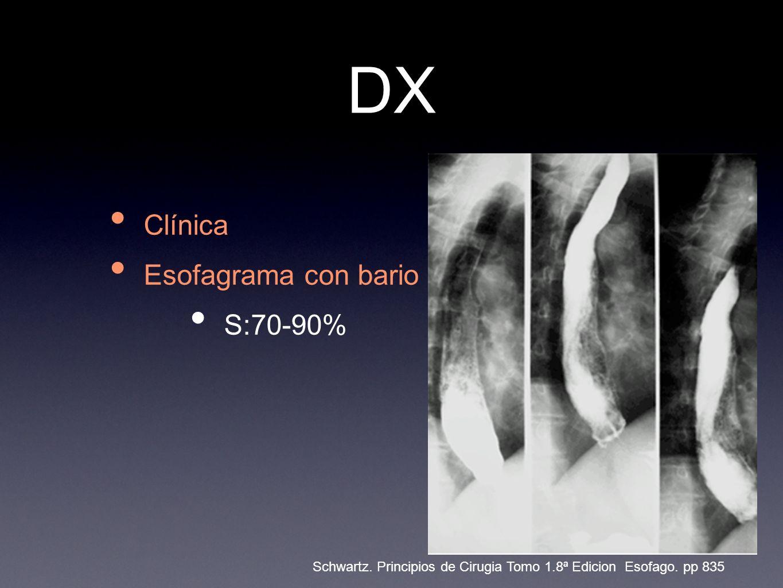 DX Clínica Esofagrama con bario S:70-90% Schwartz.