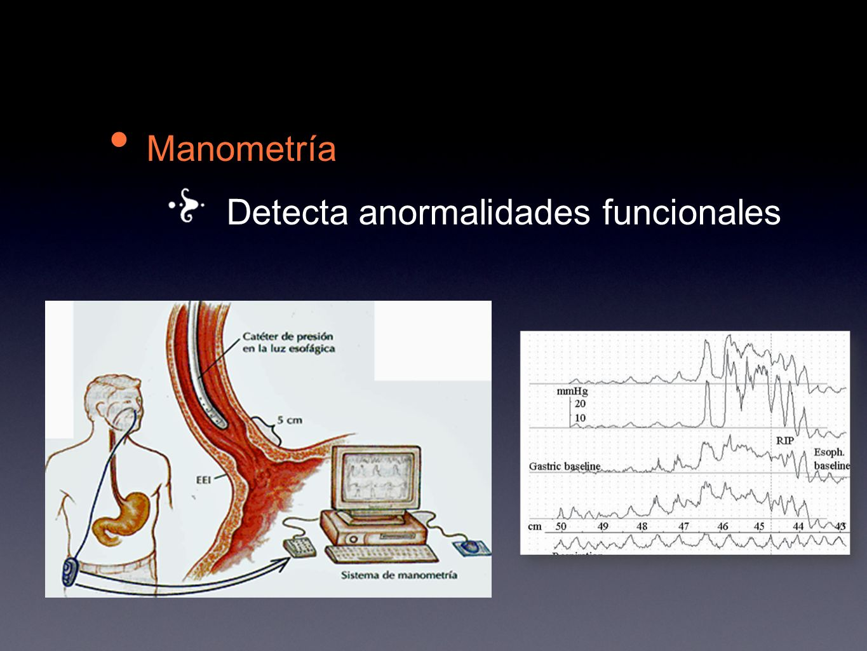 Manometría Detecta anormalidades funcionales