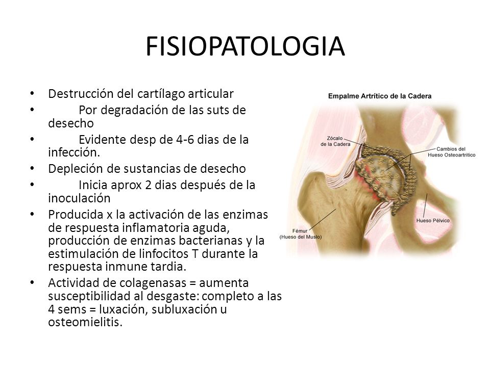 FISIOPATOLOGIA Destrucción del cartílago articular Por degradación de las suts de desecho Evidente desp de 4-6 dias de la infección. Depleción de sust