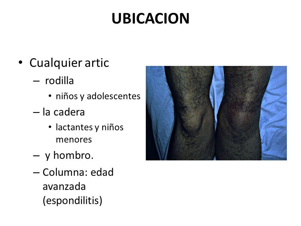 UBICACION Cualquier artic – rodilla niños y adolescentes – la cadera lactantes y niños menores – y hombro. – Columna: edad avanzada (espondilitis)
