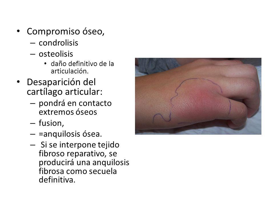 Compromiso óseo, – condrolisis – osteolisis daño definitivo de la articulación. Desaparición del cartílago articular: – pondrá en contacto extremos ós