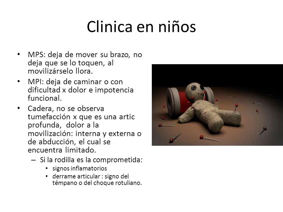 Clinica en niños MPS: deja de mover su brazo, no deja que se lo toquen, al movilizárselo llora. MPI: deja de caminar o con dificultad x dolor e impote