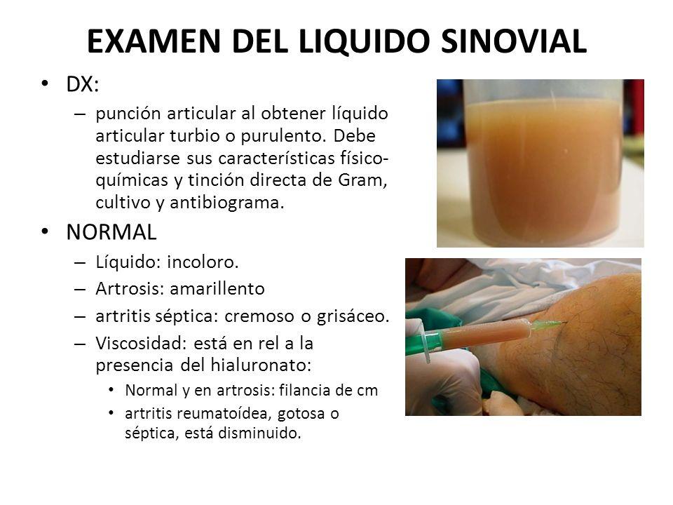 EXAMEN DEL LIQUIDO SINOVIAL DX: – punción articular al obtener líquido articular turbio o purulento. Debe estudiarse sus características físico- quími