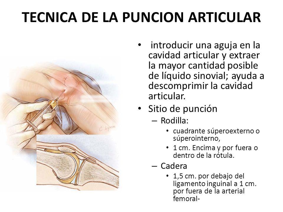 TECNICA DE LA PUNCION ARTICULAR introducir una aguja en la cavidad articular y extraer la mayor cantidad posible de líquido sinovial; ayuda a descompr