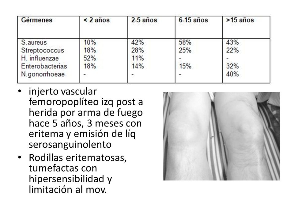injerto vascular femoropoplíteo izq post a herida por arma de fuego hace 5 años, 3 meses con eritema y emisión de líq serosanguinolento Rodillas erite