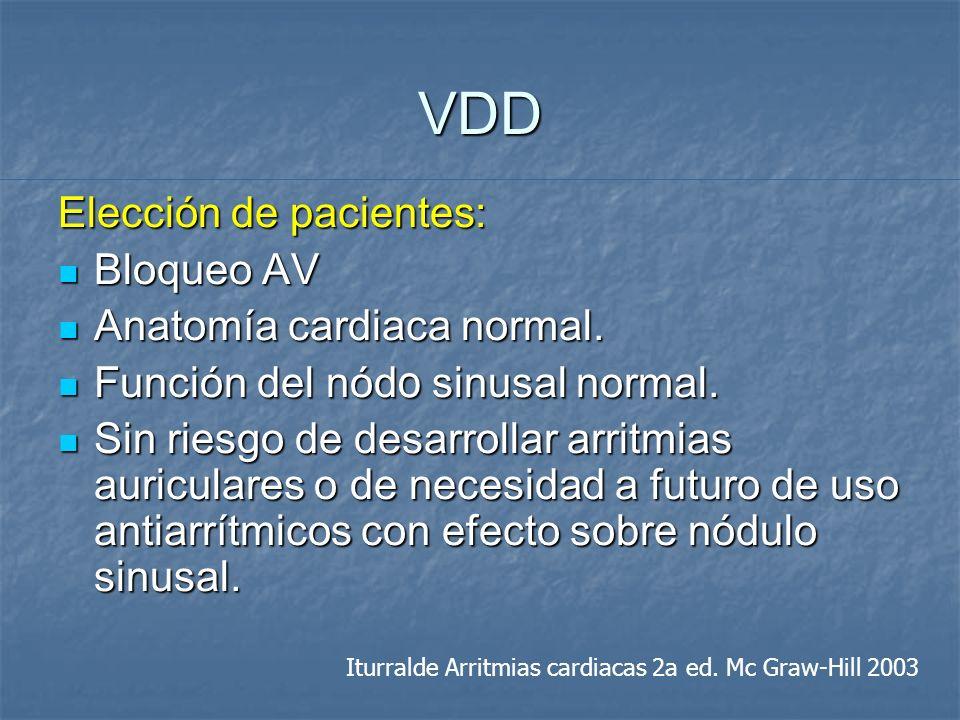 VDD Elección de pacientes: Bloqueo AV Bloqueo AV Anatomía cardiaca normal. Anatomía cardiaca normal. Función del nód o sinusal normal. Función del nód