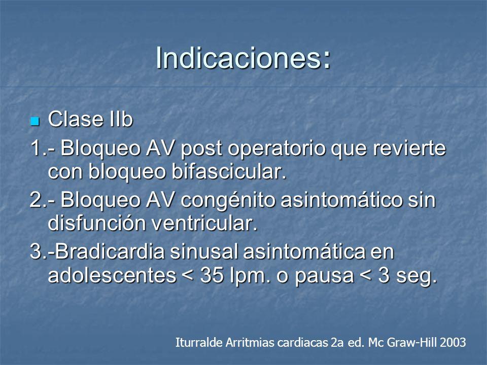 Indicaciones : Clase IIb Clase IIb 1.- Bloqueo AV post operatorio que revierte con bloqueo bifascicular. 2.- Bloqueo AV congénito asintomático sin dis