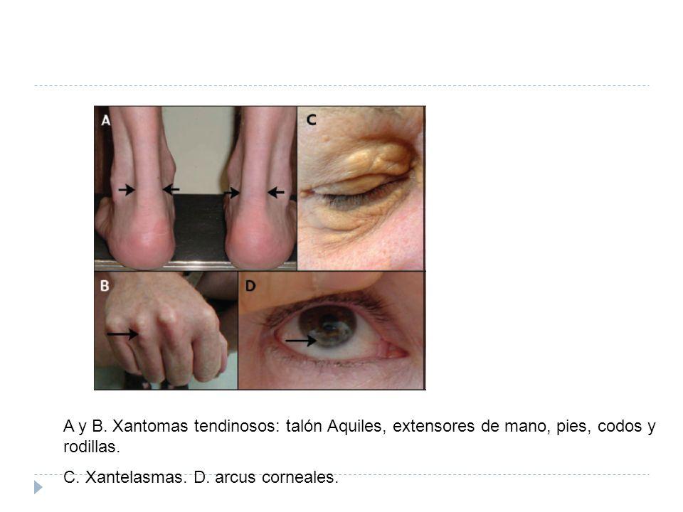A y B. Xantomas tendinosos: talón Aquiles, extensores de mano, pies, codos y rodillas. C. Xantelasmas. D. arcus corneales.