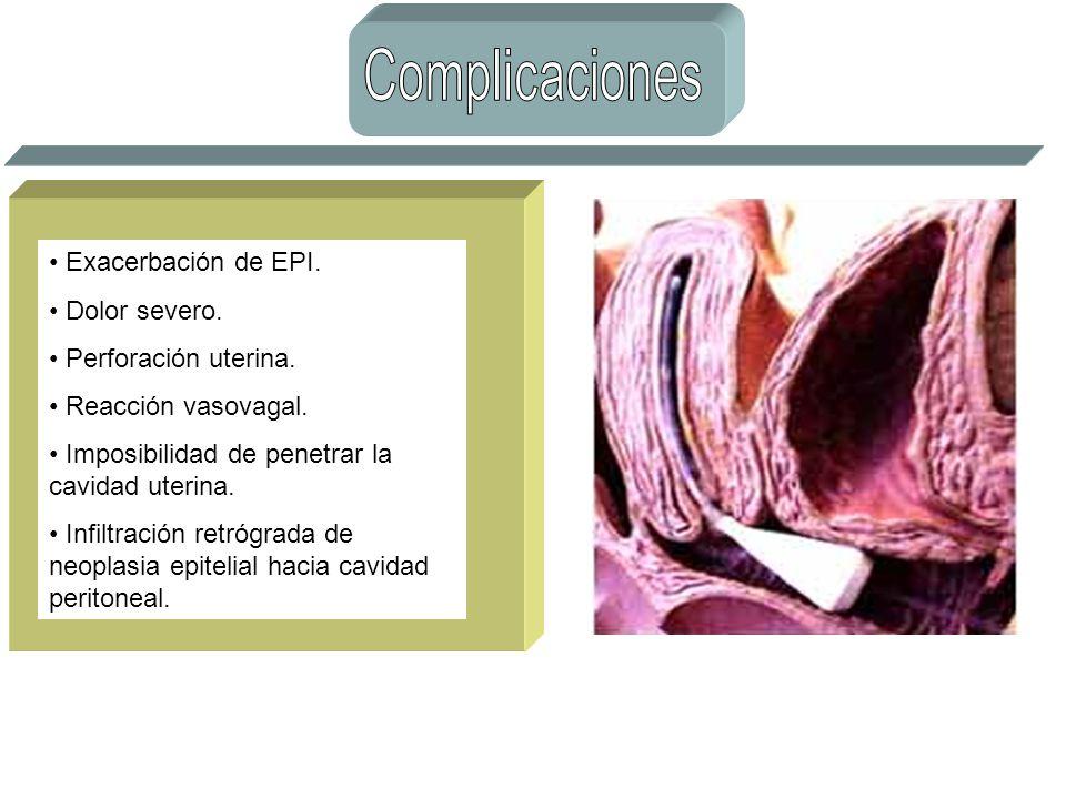 Exacerbación de EPI. Dolor severo. Perforación uterina. Reacción vasovagal. Imposibilidad de penetrar la cavidad uterina. Infiltración retrógrada de n